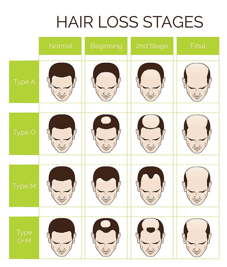 髪MORE(ハツモー)矯正「毛・ハゲに立ち向かう。」