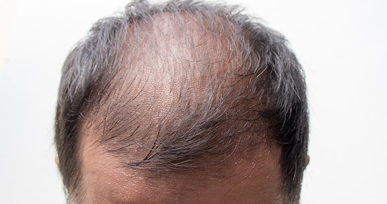髪MORE(ハツモー)矯正「血行が促進1」