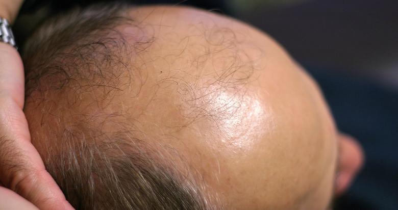髪MORE(ハツモー)矯正「血行が促進2」