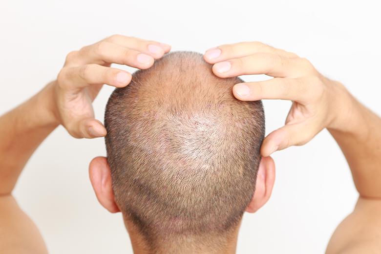 髪MORE(ハツモー)矯正『頭蓋骨の硬さ』