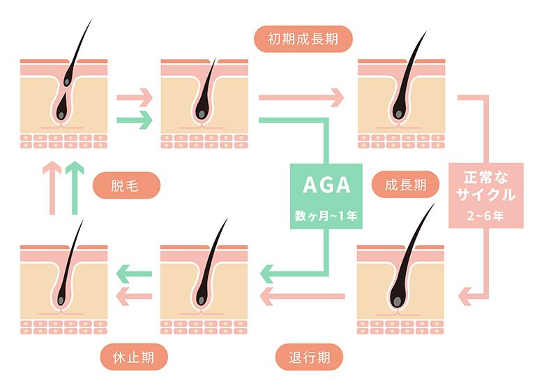 髪MORE(ハツモー)矯正「AGAなどの影響」